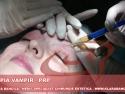 terapia prp - tratament rejuvenare faciala