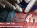 terapia prp = tratament riduri faciale