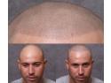 pentru barbati. servicii micropigmentarea scalpului www.elegance-clinic.ro