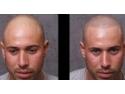 servicii micropimentarea scalpului www.elegance-clinic.ro