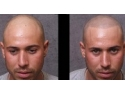 ser tratament. servicii micropimentarea scalpului www.elegance-clinic.ro
