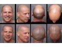 scapa de chelie. servicii micropigmentarea scalpului www.elegance-clinic.ro