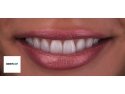 fatete ceramice. Caz de fatete ceramice.  Dr. Florin Cofar & TD. Edson da Silva. - Dentcof 2013.