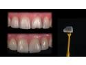 aparat dentar ceramic. Dentcof  - Incrustatiile ceramice