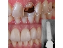 implant dentar pret. Implant dentar - caz din libraria Dentcof. - Dr. Ioan Cofar