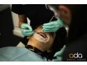 Tratament ortodontic - indreptarea dintilor