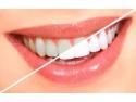 cabinet stomatologic. Albirea profesionala a dintilor