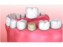 Coroana dentara: tipuri, rol, caracteristici, preturi birou arhitectura