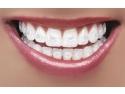 ortodontie. aparat dentar safir