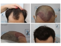 Implant de păr FUE avansat la Dr. Felix Hair Implant auto second hand