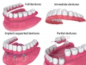 Implant dentar sau proteza dentara? drum