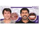 pasta de dinti. Lipsa dintilor - una dintre cauzele imbatranirii premature