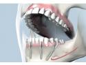 german dental. Green Dental completeaza gama de servicii cu FAST & FIXED – procedura implantologica pentru un zambet nou in 24 de ore