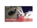 Asociatia Romana de Chirurgie Endoscopica. Promotia Lunii Decembrie – tratamente de chirurgie estetica, Dr. Klara Bancila