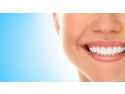 estetica dentara,implantologie,