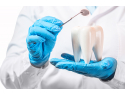 implant dentar galati