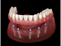 implant dentar Baia Mare -Fast & Fixed