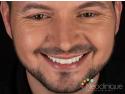 La Neoclinique, pacientul beneficiază de cea mai bună tehnologie pentru un zâmbet mai alb rapid și fără griji! recomandari