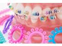 aparat dentar București