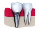 Bazar cu Lucruri Gratis. 7 lucruri mai putin cunoscute despre un implant dentar