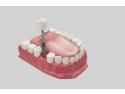 Cele mai frecvente întrebări despre implantul dentar Barletto
