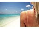 antiinflamator natural. Trateaza arsurile solare cu miere naturala
