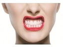 metode de contraceptie. Hollywood Smile