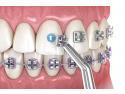 aparat ortodontic