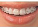 detartraj dentar. Aparate dentare din safir transparent