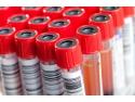 Cum se preleveaza sangele in sistem vacutainer?