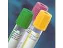 Recoltarea sangelui cu ustensile medicale inovatoare