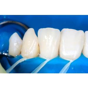 Factori importanti ce pot influenta executia unui implant dentar