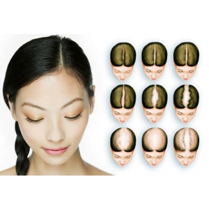 Dr. Felix Hair Implant - implant de par realizat pe baza tehnicii moderne Q-FUE
