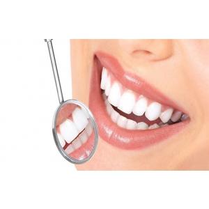 Implantul dentar – solutia perfecta pentru un zambet fara limite