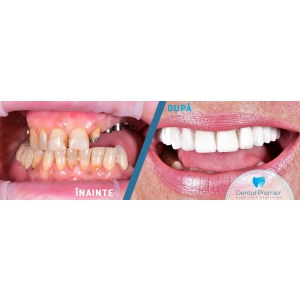 Servicii stomatologice complete la clinica stomatologica Dental Premier