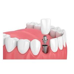 Servicii transparente de implant dentar, la Clinica Dental Premier din Bucuresti