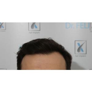 implant de par. Dr. Felix Hair Implant