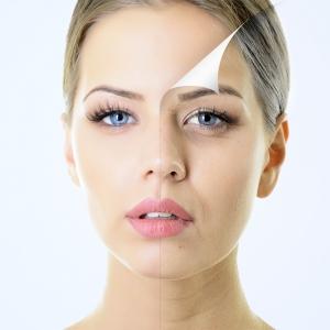 servicii botox www.elegance-clinic.ro
