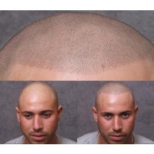 chelia barbati si femei. servicii micropigmentarea scalpului www.elegance-clinic.ro