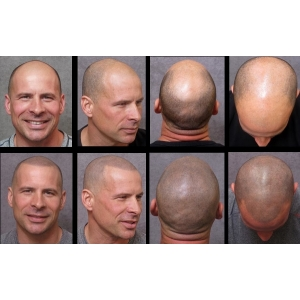 pudra chelie. servicii micropigmentarea scalpului www.elegance-clinic.ro