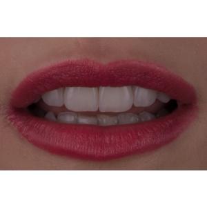 Dentcof - Igienizare Profesionala