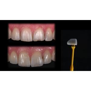 Dentcof  - Incrustatiile ceramice