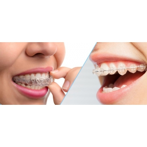 Aparat dentar invizibil: Safir, Ceramic, Lingual, Invisalign