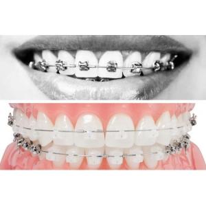 Cat costa un aparat dentar si care este pretul corect?
