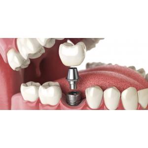 Cat costa un implant dentar si care este pretul corect?