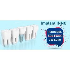 Câteva motive pentru a alege implanturile dentare de la Dental Premier