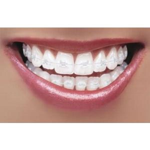 aparat dentar. aparat dentar safir