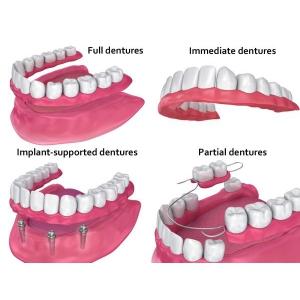 implant dentar sau proteza dentara