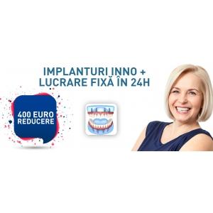 Protezele fixe pe implanturi dentare de la Dental Premier