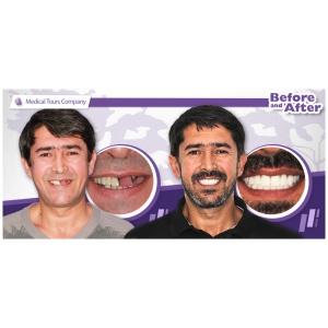 Lipsa dintilor - una dintre cauzele imbatranirii premature